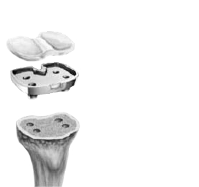 Tibial Implant